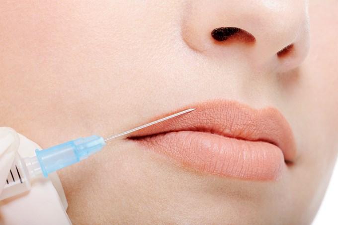 Se faire injecter du botox