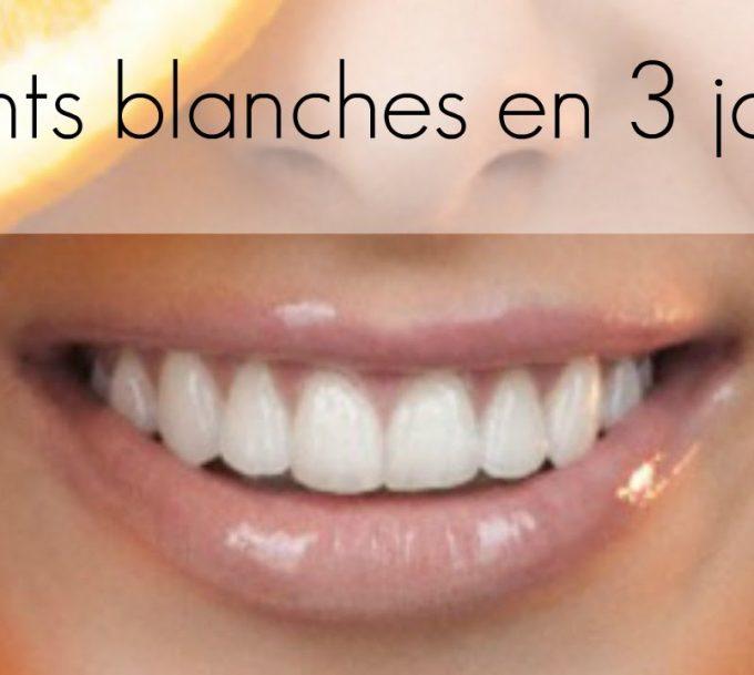 Comment avoir les dents blanches en 2 jours ?