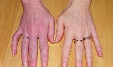Comment soigner l'algodystrophie ?